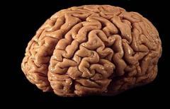 Human_brain_01.jpg